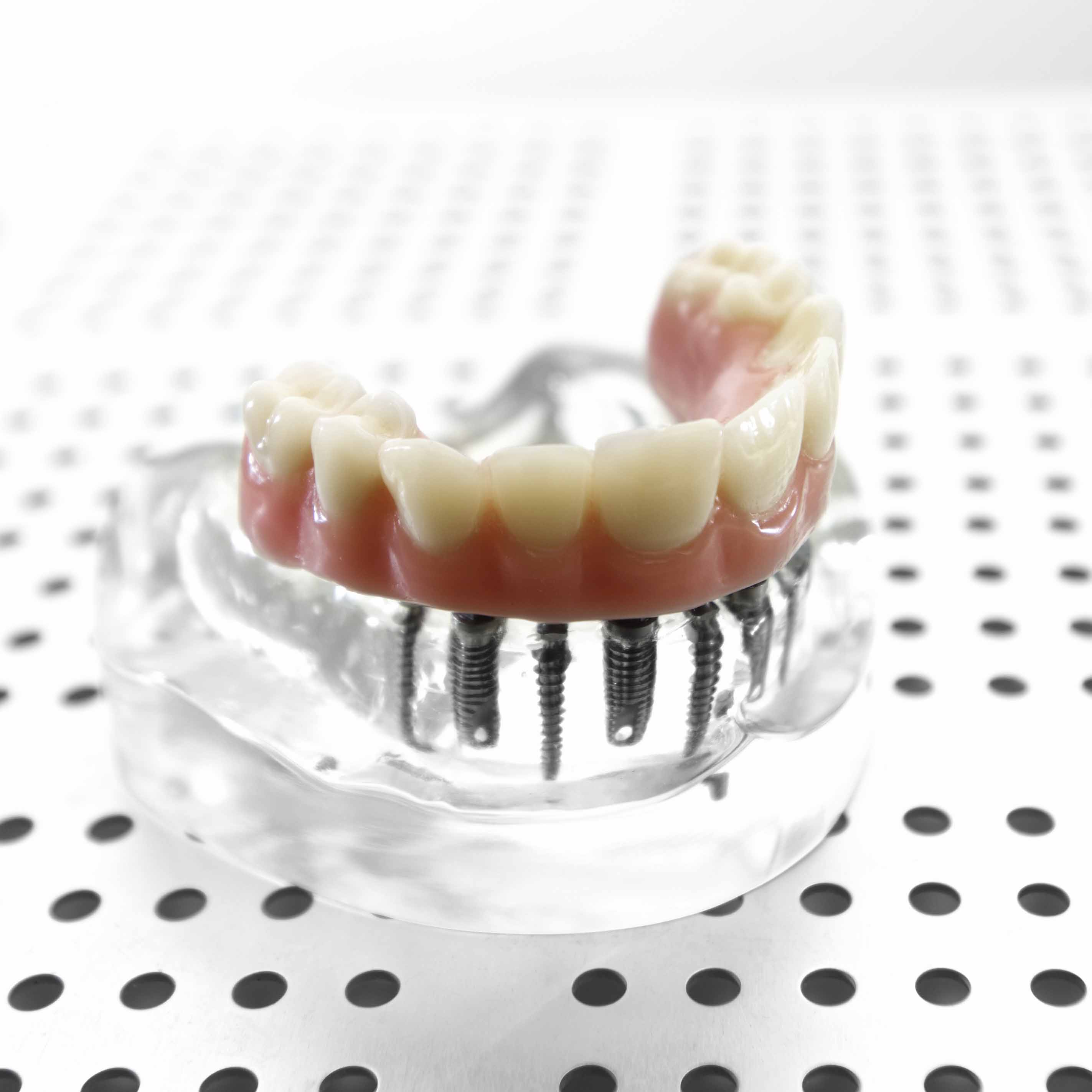 Customised dentures service at Villa Dental