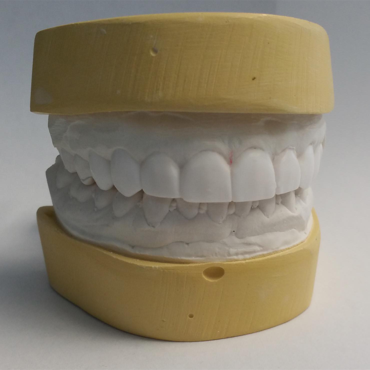 Dental Crowns and Bridges at Villa Dental