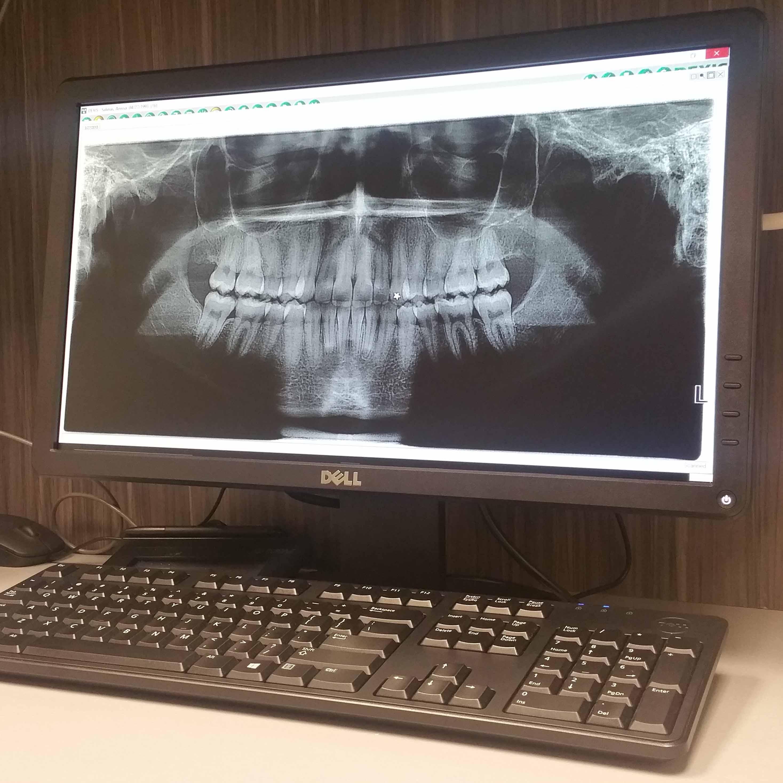 Gum Therapy at Villa Dental